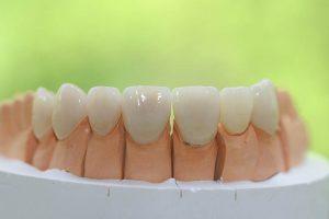Permalink auf:Zahnersatz